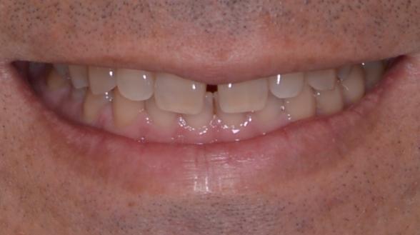 前歯が唇からどれだけ露出しているかバランスをみる