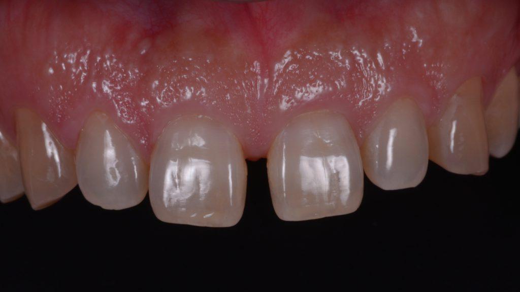 前歯がすきっ歯