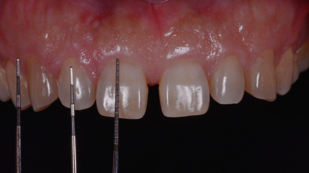 歯の長さを計測中