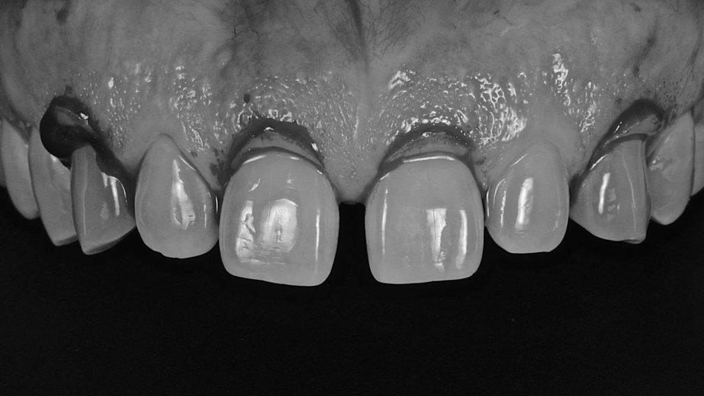 クラウンレングスニング:歯の長さや歯茎のラインを整える外科処置