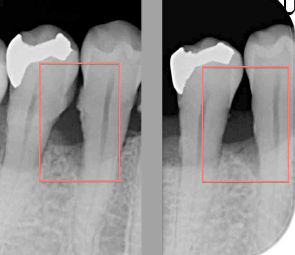 歯周病レントゲン
