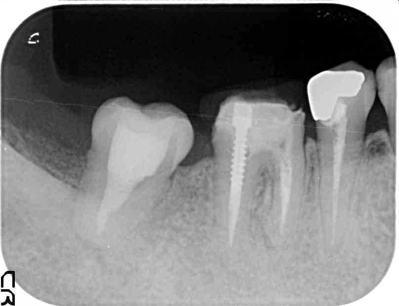 術後2年骨の無かった場所にレントゲンでもはっきりと骨が再生されているのが解る
