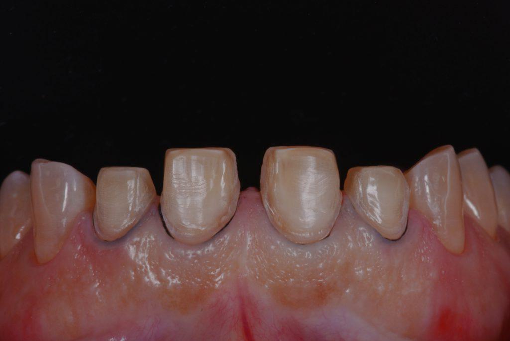 歯を一層削った状態