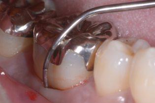 奥歯の歯周病歯周ポケット7mm
