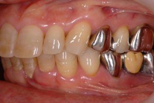 奥歯が悪い方、無い方必見、奥歯の歯周病治療