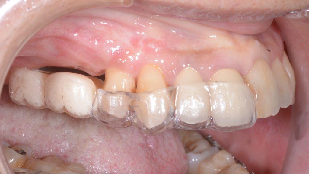 奥歯のインプラント再生治療