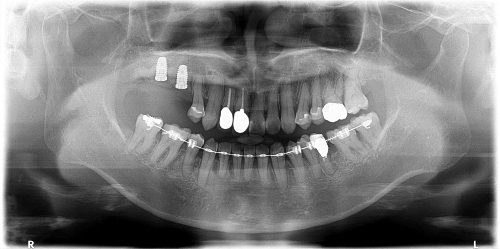 奥歯のインプラント再生治療レントゲン