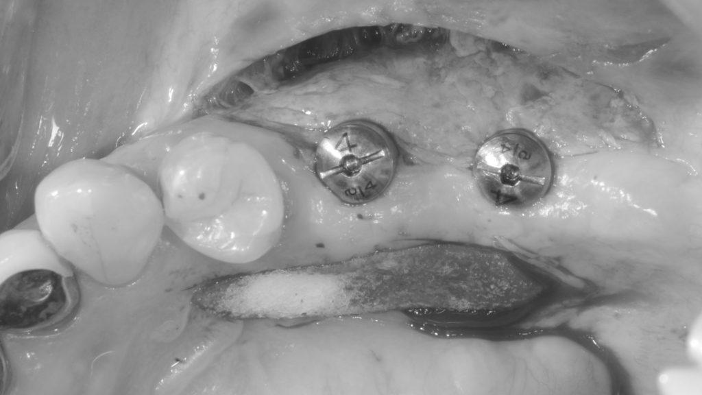 奥歯の再生治療