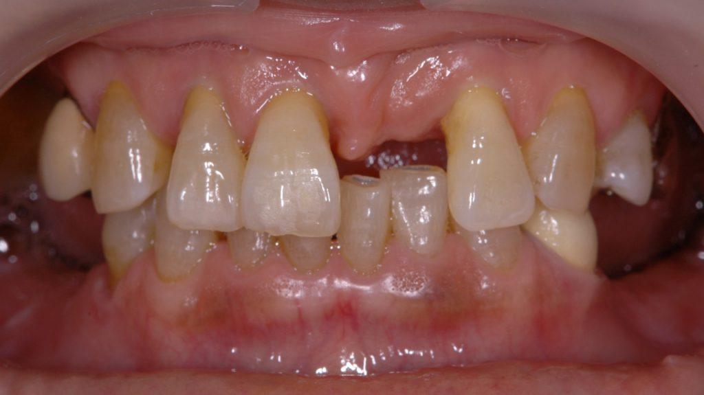 奥歯のインプラント術前