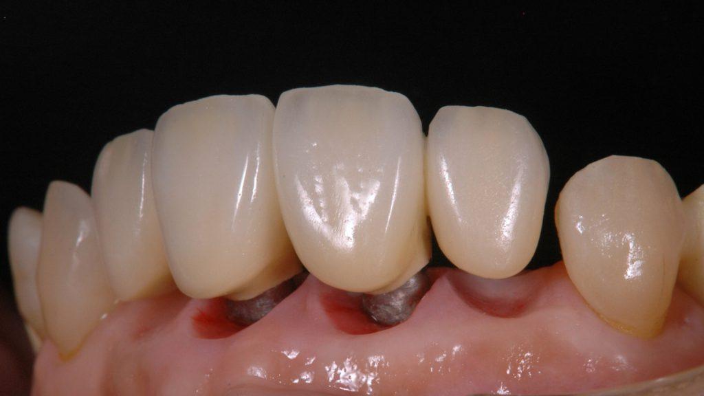 奥歯のインプラント術中