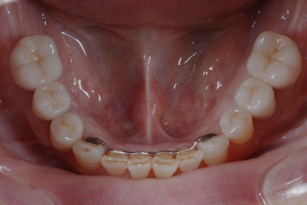 奥歯のインプラント審美治療