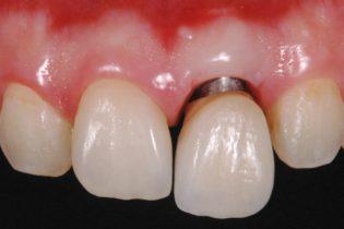 前歯1本インプラント治療後