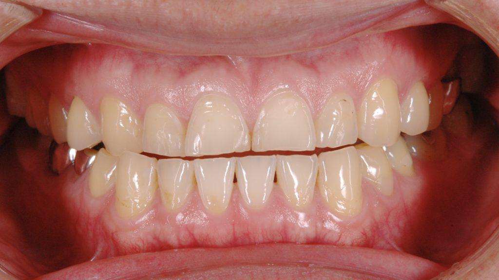 全体的にすり減った歯