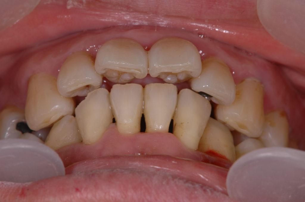 患者の習慣的に咬んでいる噛み合わせ(習慣的咬頭嵌合位)