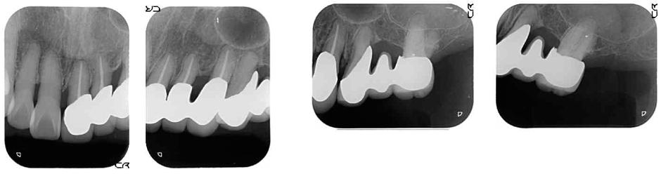 術前レントゲン、歯の周りの骨も大分なくなっている