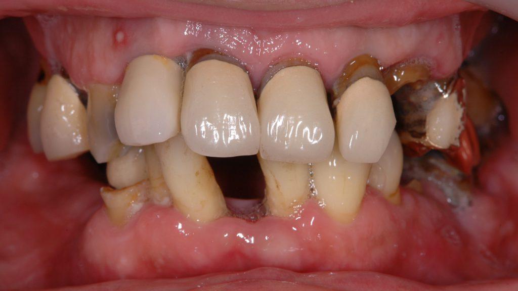 治療前、残っているほとんど全ての歯がぐらぐらで使えない