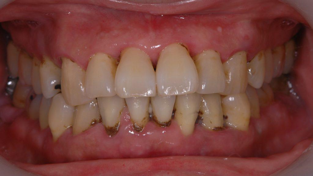 多量の歯石が歯茎の中にまで付着している