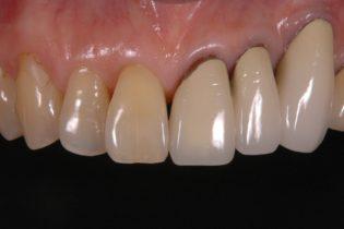 向かって右側の前歯が長過ぎる