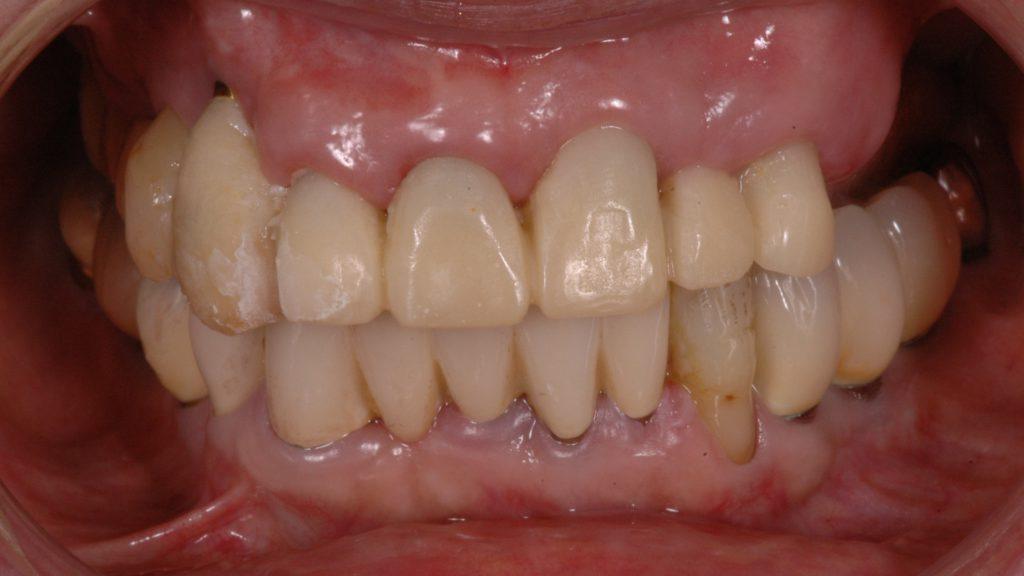 一見歯はあるが残っている上の歯は大きな虫歯、歯周病でぐらぐら