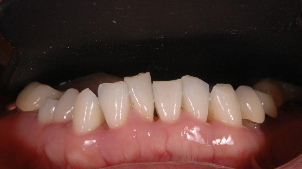 下の歯並びも悪い