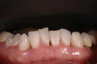 歯並び、噛み合わせが悪く歯周病になってしまっている。。。