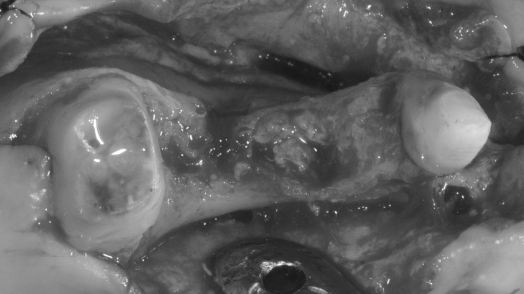 術前、骨のまったくない歯槽堤
