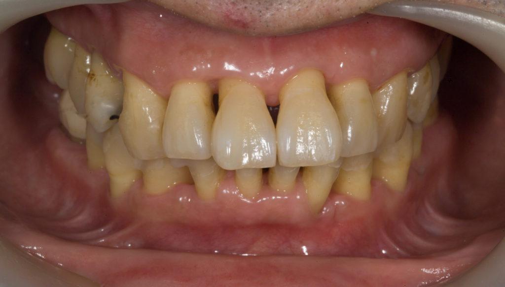 その歯石を完全に取り去った状態