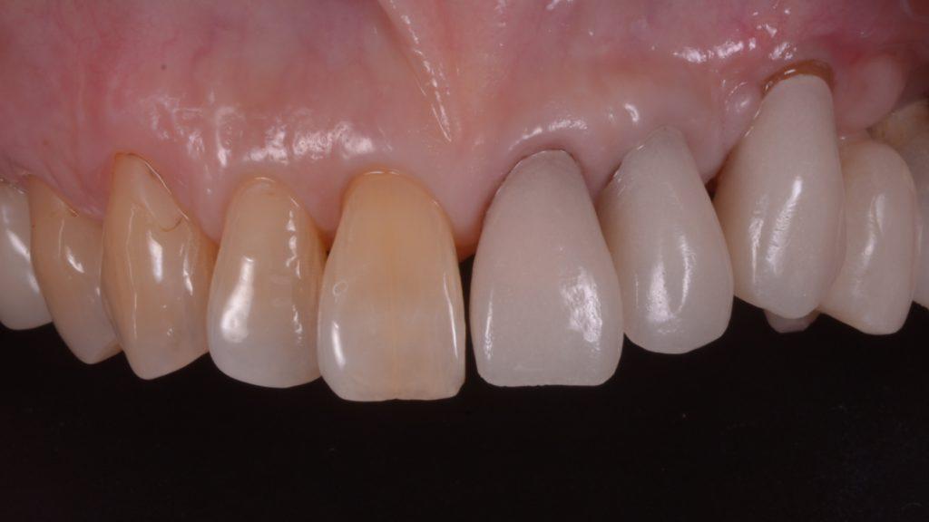 先ずは本当の歯の位置と形を回復するための仮歯をいれる