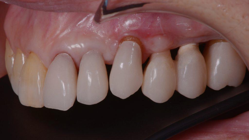 本来の前歯の位置はこんな感じ