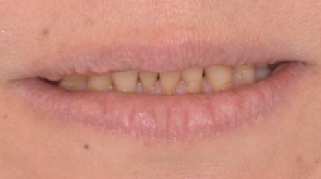 笑っても上の前歯が見えない