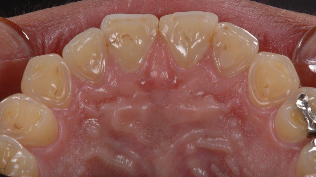 上前歯裏側、摩耗が著しい