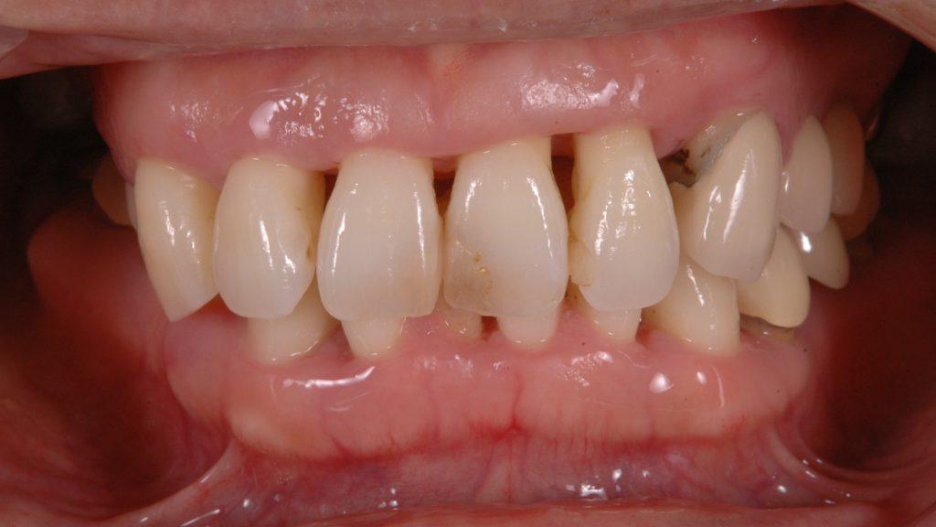 進行した歯周病で歯茎に大きな隙間が出来てしまっている