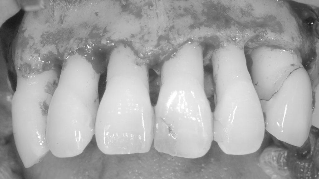 上前歯歯茎をめくったところ