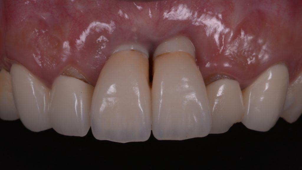 他院で受けた前歯2本のインプラント治療