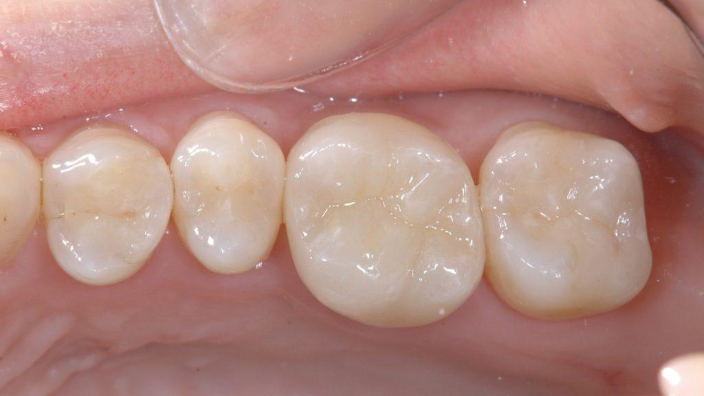 移植歯にセラミックを被せた状態