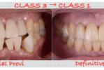 歯周病、噛み合わせ、歯牙欠損、全てが解決