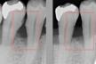 いくつあてはまる?見た目ではわかりづらい歯周病。あなたの口の中は大丈夫ですか?