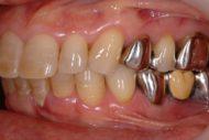 奥歯が無い方必見!奥歯の歯周病治療、歯槽膿漏って治るの?諦める前にご相談ください!!